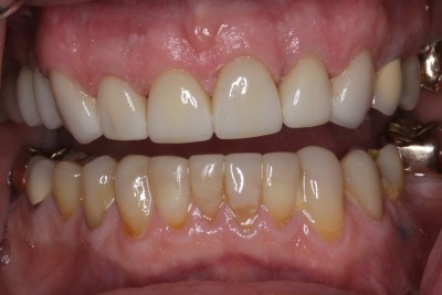 After Full Mouth Reconstruction