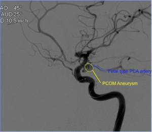 (2) Coils can be seen within the PCOM aneurysm.