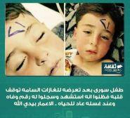 صورة لطفل سوري عاد للحياة بعد تغسيله