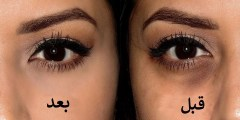 ما هي اسباب الهالات السوداء تحت العينين وما طرق علاجها