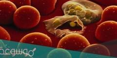 ما هو التلوث البكتيري