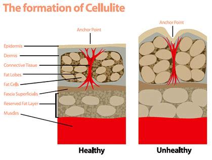 Cómo se forma la celulitis