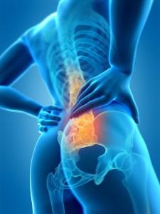 腰痛の原因となる筋肉