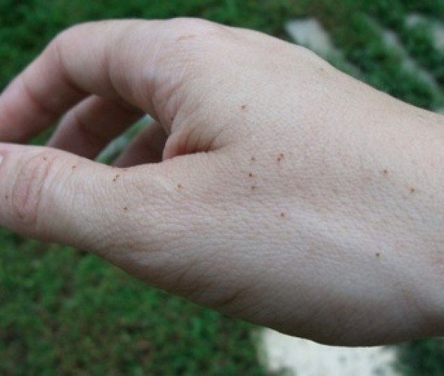 Can You See Those Little Dots Those Are About A Hundred Baby Ticks Crawling Across My Hand And Up My Arm This Is Actually A Small Tick Bomb