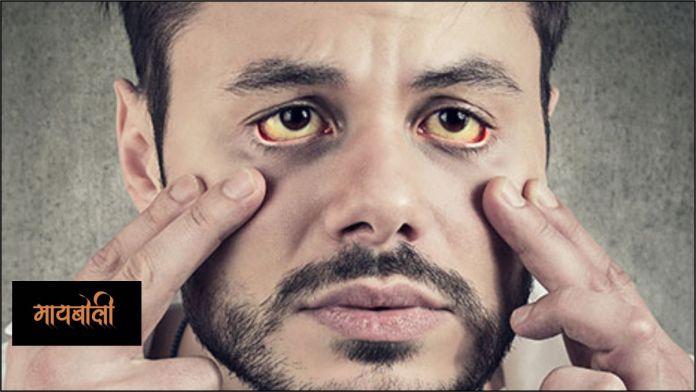 kavil symptoms in marathi