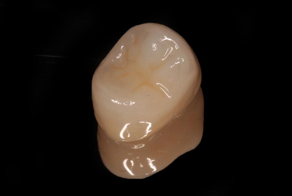 Corona in zirconia monolitica premolare
