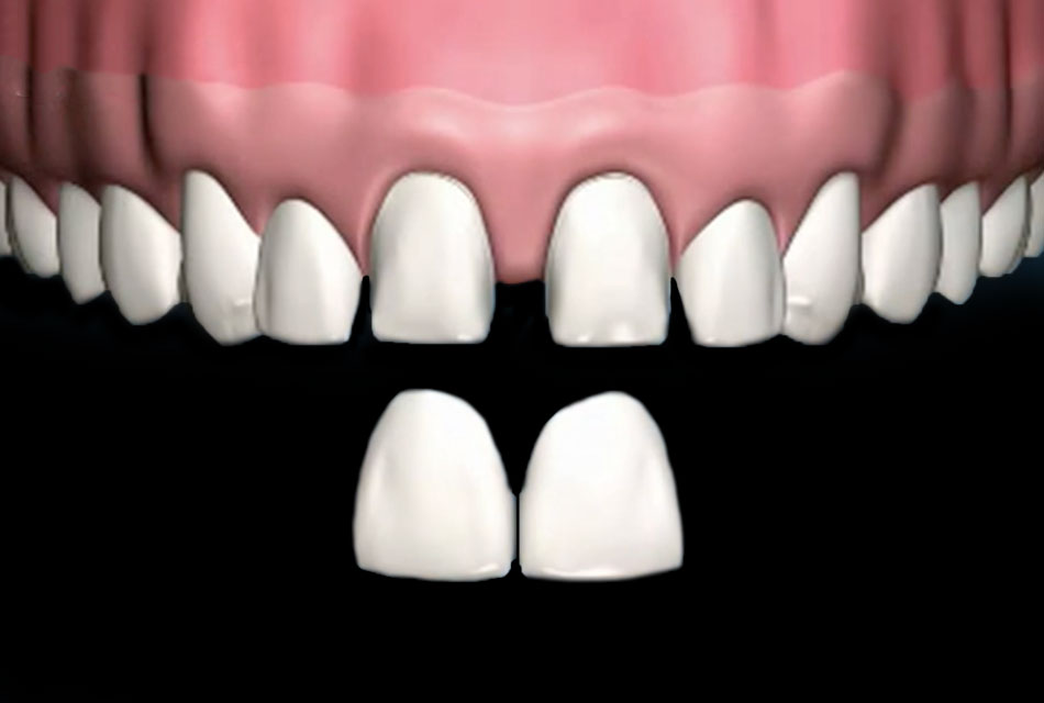 Read more about the article Faccette Veneers