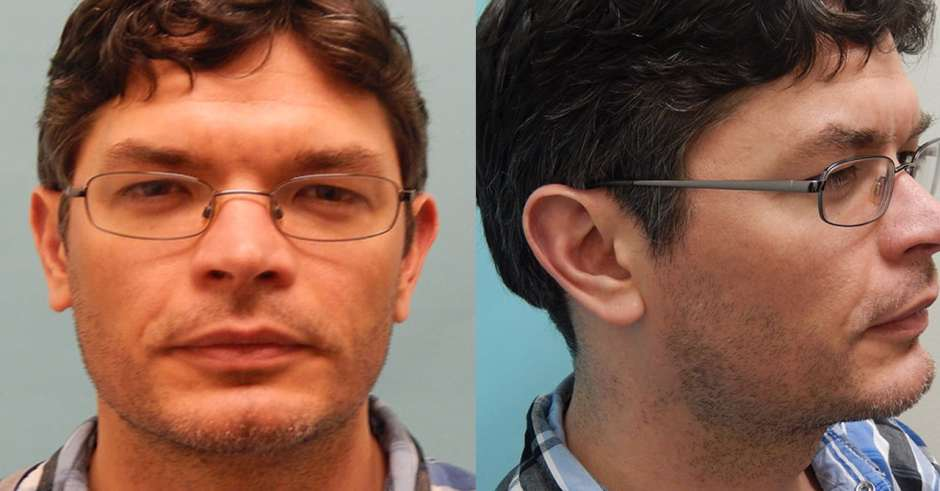 Jeremy before beard hair transplantion