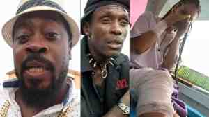 Beenie Man In Serious Trouble??   Dancehall Artist Injured, Broke Jaw, Rib & Hand