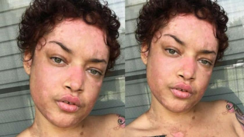 Young Woman Battling Lupus Gracefully