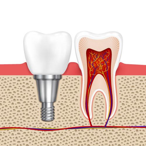 dental implant dentist Chattanooga TN