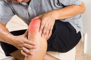 kolano - przed rehabilitacją kolana