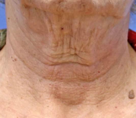 Πρόλαβε τις ρυτίδες λαιμού