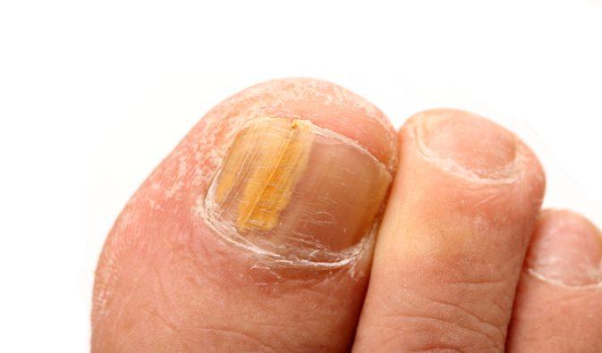 Για τους μύκητες στα νύχια των ποδιών υπάρχει γιατροσόφι