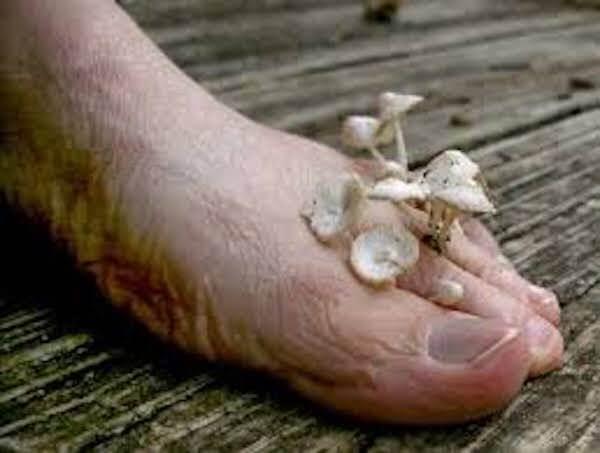 Μύκητες στα πόδια;