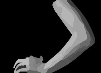 Για τους μαυρισμένους αγκώνες