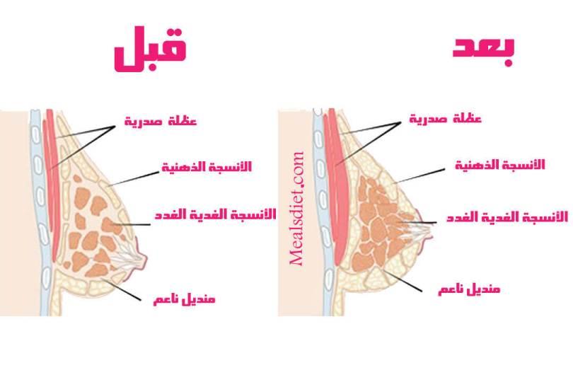 قبل وبعد زيادة حجم الثدي(1)