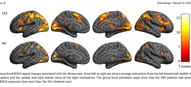 diagram showing more of the brain lit up compared to controls