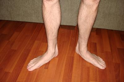 Что такое плоскостопие: причины, симптомы, принципы лечения и профилактики. Плоскостопие у взрослых: симптомы и лечение