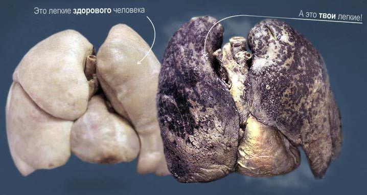 Бросаем курить: через сколько очищаются лёгкие после отказа от никотина. Очистка легких курильщика: проверенные рецепты