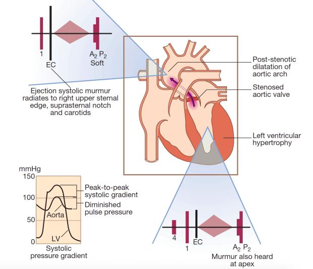 Aortic stenosis - davidson 621
