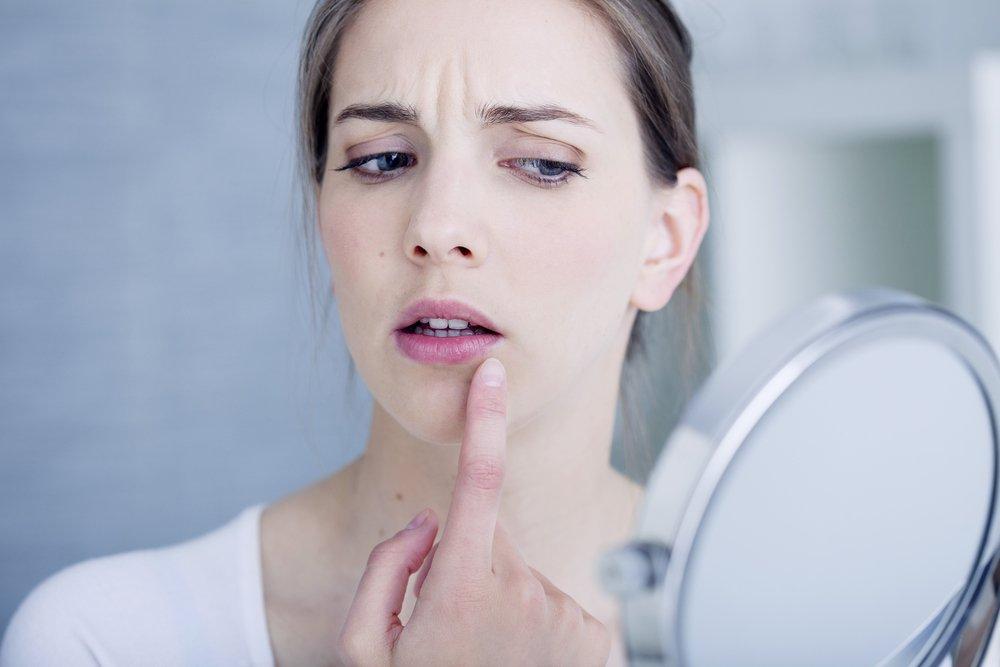Trattamento dei raffreddori sulle labbra: ogni minuto è importante!