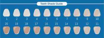 Different shades of teeth color