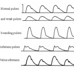 Different Types of Pulses