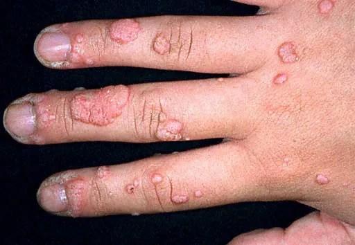 Warts on hand
