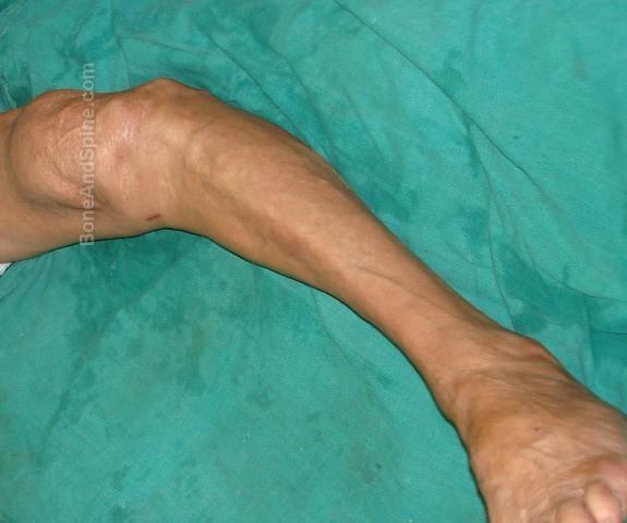 Varus Deformity of The Knee