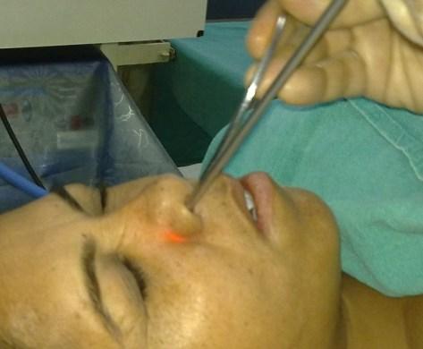 Endoscopic Examination of Nose