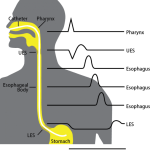Esophageal manometry  Indications and Procedure