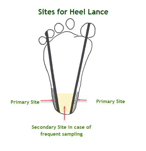 Heel Stick or Heel Lance for Blood Sampling | medcaretips.com