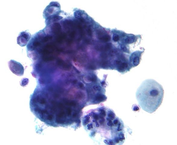 Bethesda system Adenocarcinoma on Pap Stain