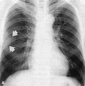 Xray showing mild opacity in case of Loffler syndrome
