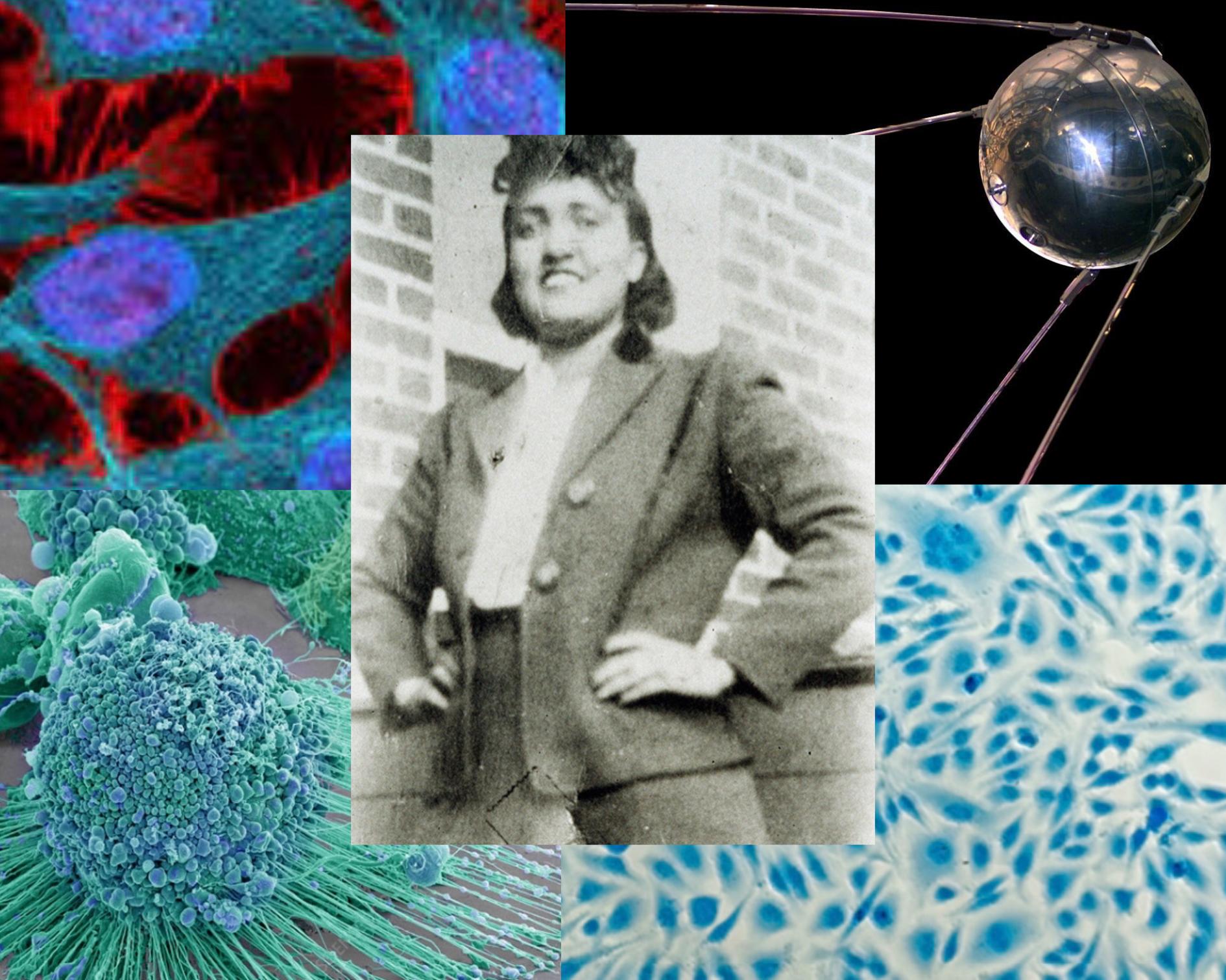 Immortal Cells of Henrietta Lacks/HeLa
