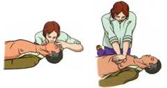 Доврачебная помощь при болях в сердце
