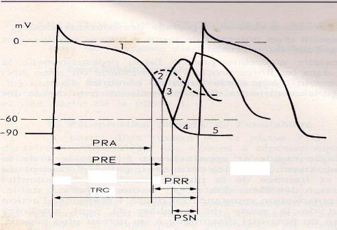 automatisme  cardiaque et pente de dépolarisation diastolique spontanée (ddl)