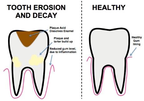 Les caries dentaires