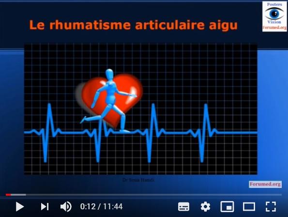 Rhumatisme articulaire aigu RAA et le risque d'une maladie cardiaque