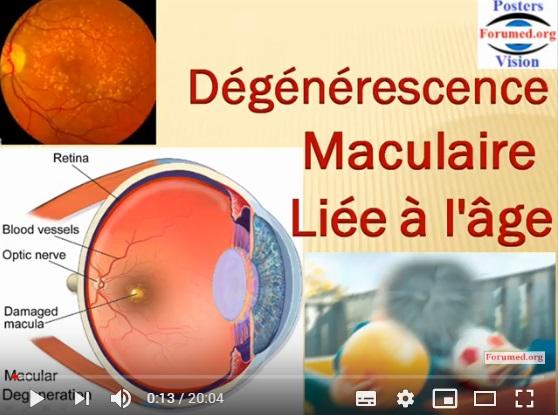 Dégénérescence Maculaire Liée à l'Age DMLA