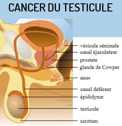 CANCER DU TESTICULE