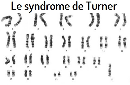 Le syndrome de Turner