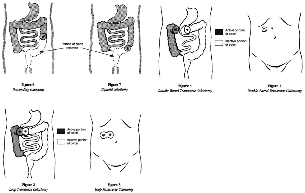Ostomies Medical Education
