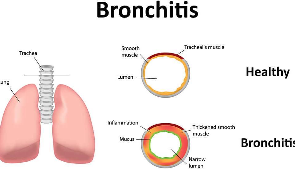 Bronchitis Medek
