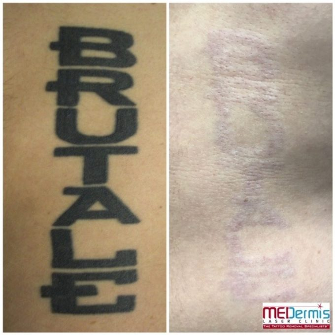 Why Do Some Tattoos Get Darker After A Laser Tattoo Removal Session?