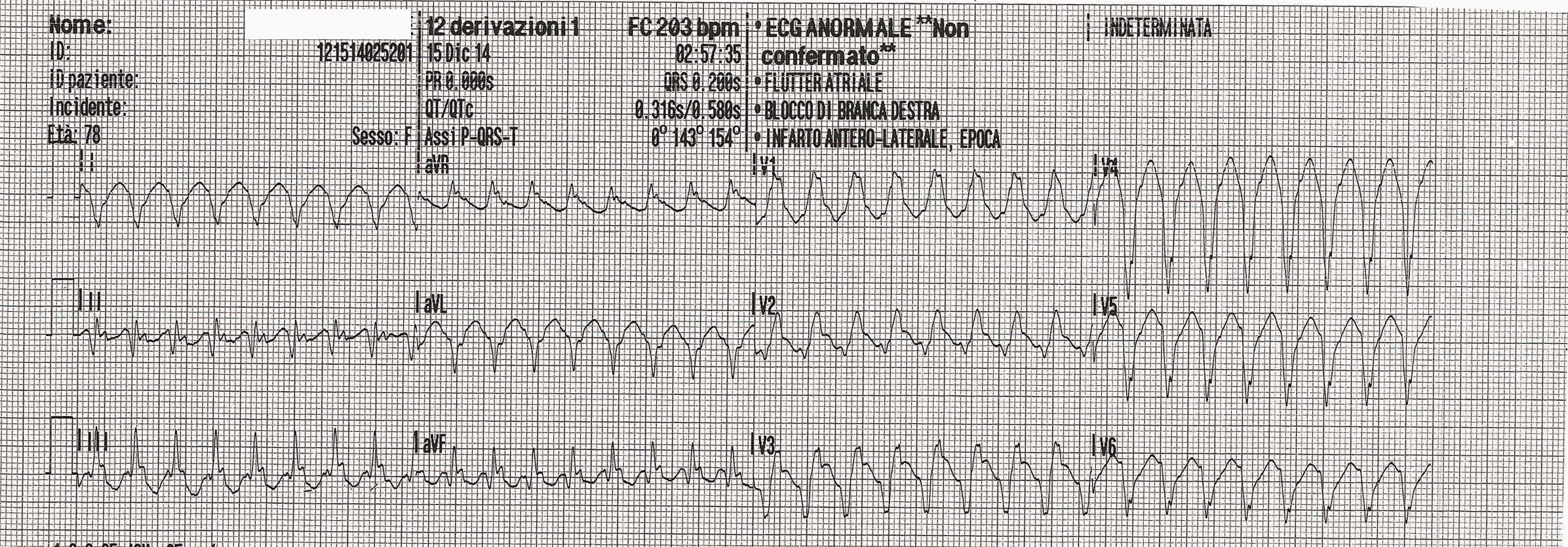 Ectopy Or Aberrancy Ecg Community Comments On A Clinical Case