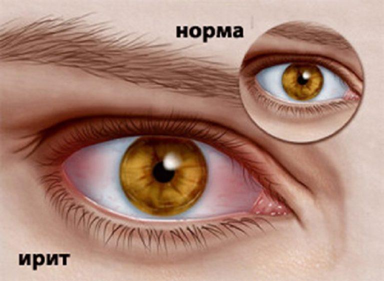 varicoză capli)