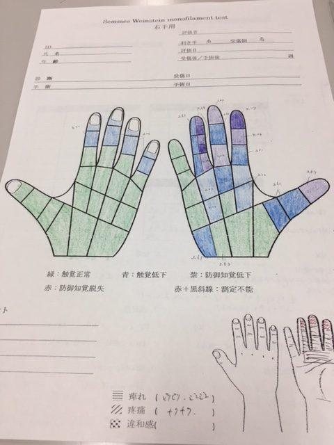 手根管症候群 検査
