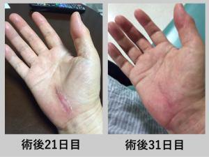 手根管症候群 術後